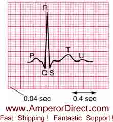 ekg measurement and interpretation at rest Quizzes body heart ekg all about ekg all about ekg 15 questions | by rs1492 | last updated: apr 4 angina at rest d ekg or heart rhythm changes that are not perceived by the patient d.