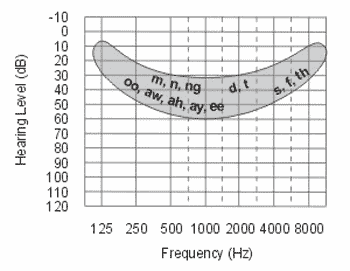 "The goal of a hearing aid (HA) is to raise your ""aided threshold"" to above the shaded area in the audiogram. In the following diagram, the red and black ..."