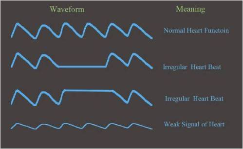 an interpretation of on the pulse How do i interpret oximeter readings but while using an oximeter it is important to know how to interpret the readings it generates the pulse oximetry normal.